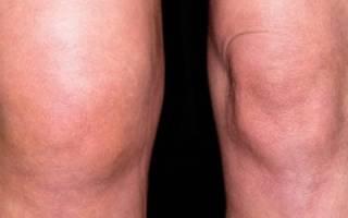 Опухают суставы на ногах лечение