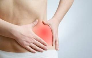 Синовит тазобедренного сустава лечение
