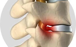 Может ли при остеохондрозе болеть грудная клетка