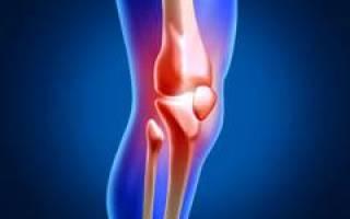 Сколько стоит замена коленного сустава