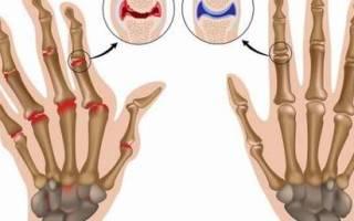 Разрыв связок на пальце руки