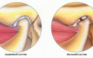 Артрит верхнечелюстного сустава симптомы