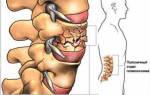 Корсет при компрессионном переломе позвоночника поясничного отдела