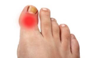 Воспалился сустав на пальце ноги