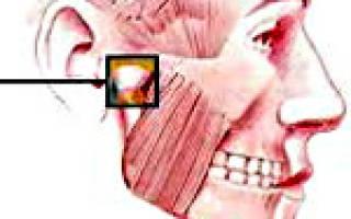 Боль в височно нижнечелюстном суставе