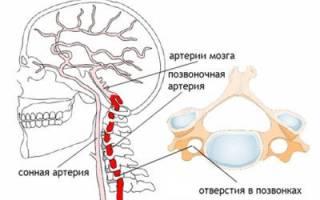 Головная боль при остеохондрозе шейного отдела симптомы