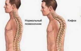 Физиологический кифоз грудного отдела позвоночника