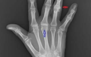 Полиартрит пальцев рук лечение в домашних условиях