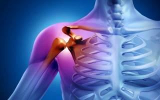 Перелом большого бугорка плечевой кости без смещения