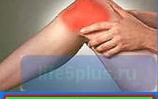 Болезни коленных суставов и их лечение