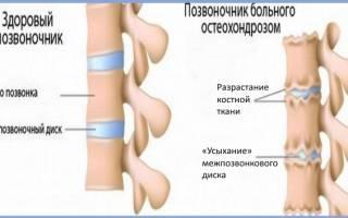 Хондропротекторы при шейном остеохондрозе