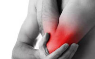 Тендовагинит локтевого сустава лечение