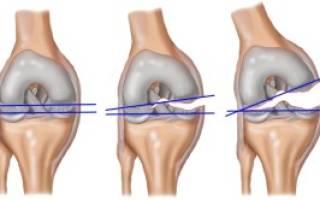 Разрыв связок коленного сустава фото