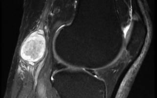 Киста коленного сустава лечение