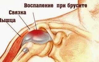 Бурсит плечевого сустава лечение в домашних условиях
