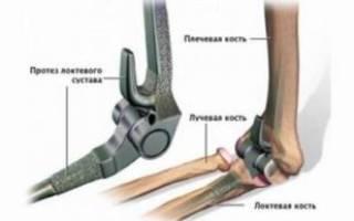 Операция на локтевом суставе