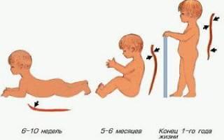 Физиологический кифоз