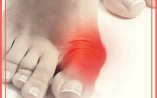 Болит кость на большом пальце ноги