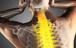Распространенный остеохондроз позвоночника симптомы