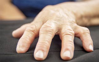 Артроз рук симптомы лечение и фото