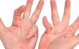 Лечение контрактуры дюпюитрена коллализином
