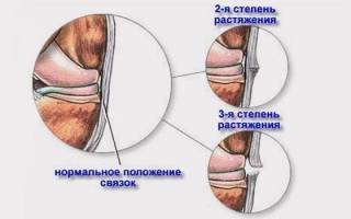Разрыв связок кисти руки симптомы