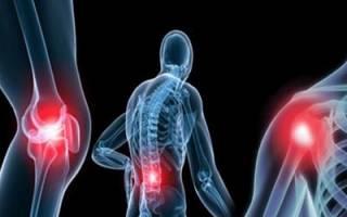 Остеоартроз коленного сустава мкб 10