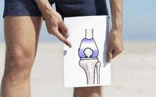 Эндопротезирование коленного сустава видео