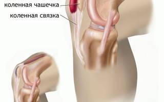 Бурсит коленного сустава лечение в домашних условиях