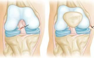 Разрыв крестообразной связки колена лечение