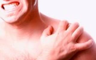 Чем лечить бурсит плечевого сустава