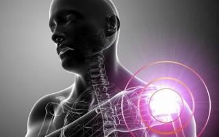 Периартроз плечевого сустава лечение
