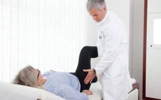 Коксит тазобедренного сустава у взрослых