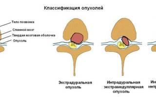 Опухоль позвоночника поясничного отдела симптомы