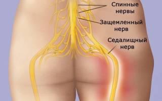Ишиас симптомы и лечение