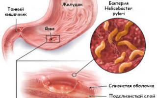 Сильные боли в желудке отдающие в спину