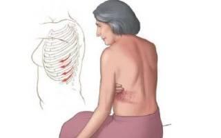 Опоясывающая боль под ребрами и в спине