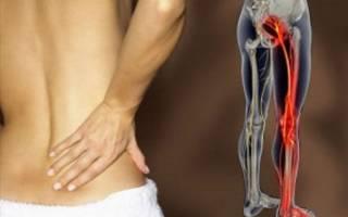 Защемление седалищного нерва лечение народными средствами