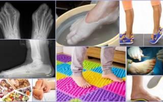 Как лечить плоскостопие у взрослых