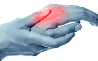 Почему болят суставы кистей рук