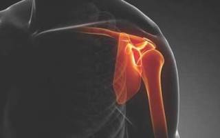 Разрыв связок плечевого сустава лечение