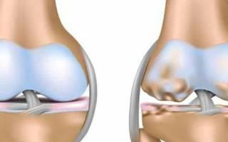 Остеохондропатия коленного сустава