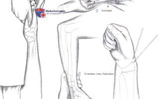 Репозиция лучевой кости со смещением