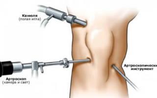 Артроскопия коленного сустава реабилитация после операции