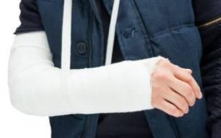 Реабилитация после перелома лучевой кости руки