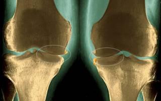 Лекарства и лечение артроза коленного сустава