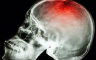 Как выправляется вдавленный перелом костей черепа