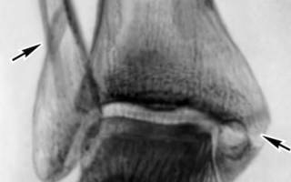Посттравматический артроз голеностопного сустава