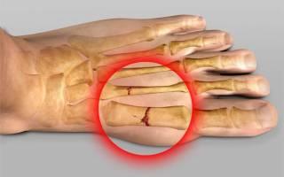 Перелом 5 плюсневой кости стопы восстановление