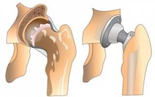 Эндопротезирование тазобедренного сустава видео